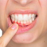 عفونت دندان چه علائمی دارد