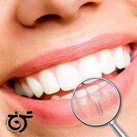ایمپلنت تک دندان