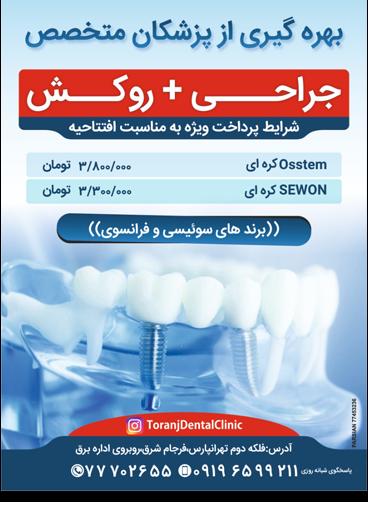تخفیف ایمپلنت دندان
