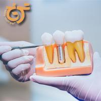 تاثیرات سیگار بر ایمپلنت دندان