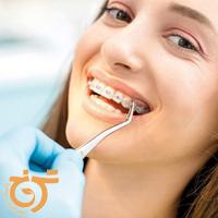ارتودنسی ثابت دندان در تهران