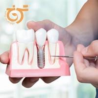 مزایای ایمپلنت نسبت به دندان مصنوعی