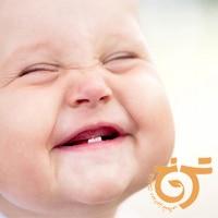 نکاتی درباره دندان های شیری