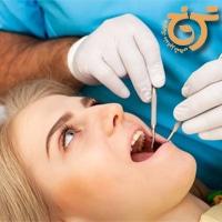 زمان مناسب کشیدن دندان عقل